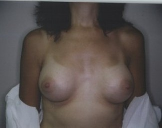 BreastAugmentation After picture